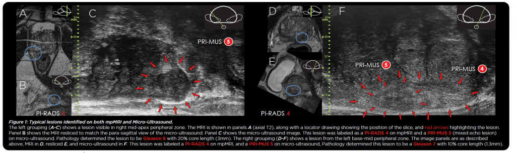 Comparison of Micro-Ultrasound and Multiparametric MRI Imaging for Prostate Cancer: An International Meta-Analysis